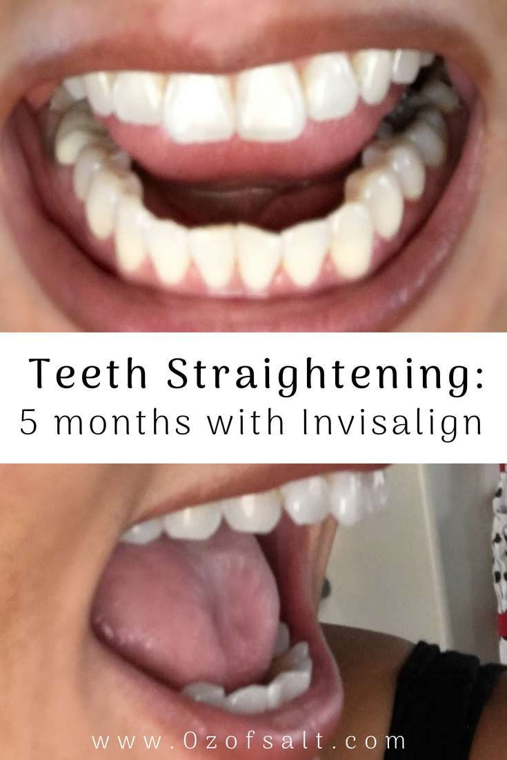 Learn all about the aftermath of Invisalign Teeth Straightening! I reveal everything they DON'T tell you about this popular cosmetic teeth straightening experience. #ozofsalt #teethstraightening #beautyblogger